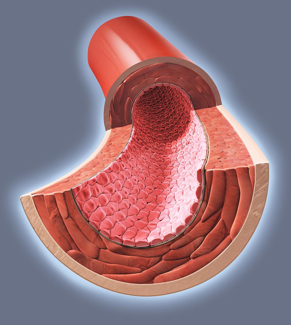 Artery Cross Section Craig Zuckerman