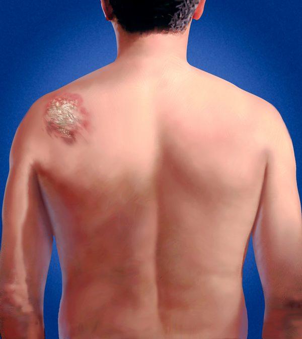 Back Psoriasis