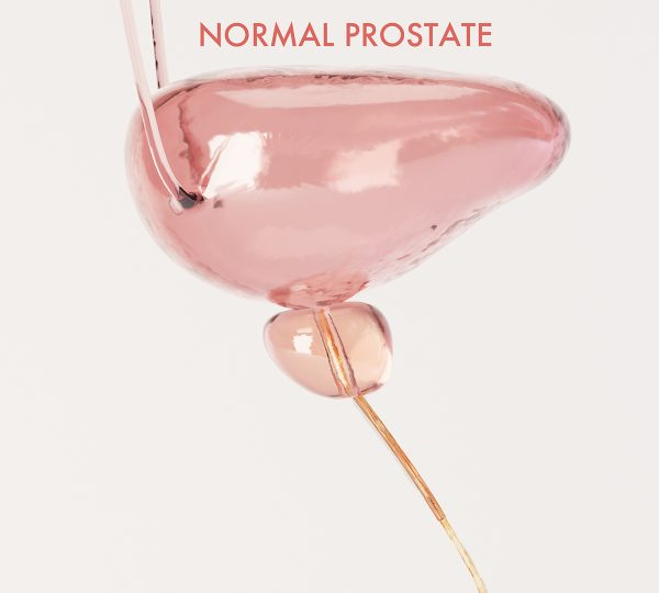 Bladder and Healthy  Prostate