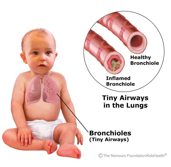 Bronchiolitis llC