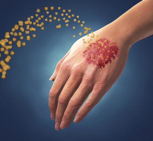 Hand Psoriatic Arthritis