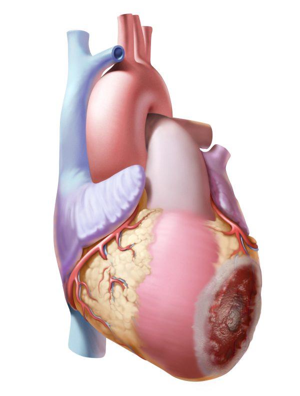 Heart Ischemia