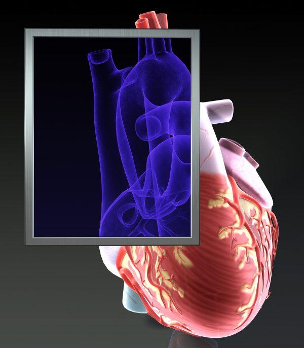 Heart X-Ray