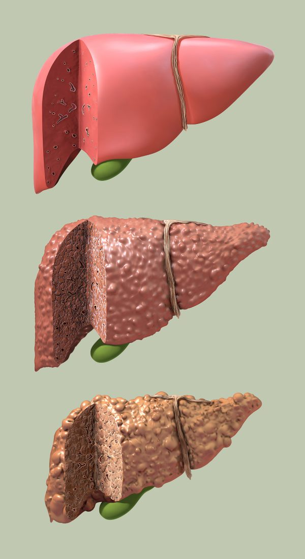 Progression of Liver Disease